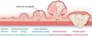 大腸瘜肉與大腸癌的關係