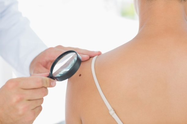 Doctor examining melanoma on woman with magnifying glass in clinic